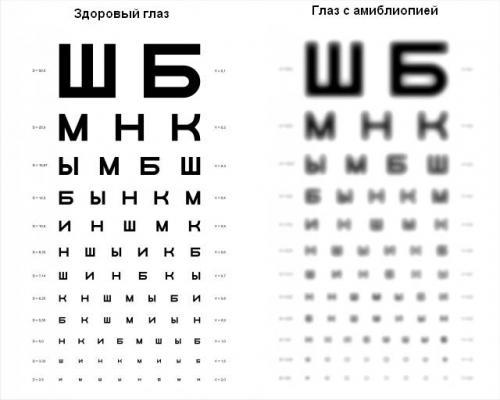 Рецепт восстановления зрения академика филатова